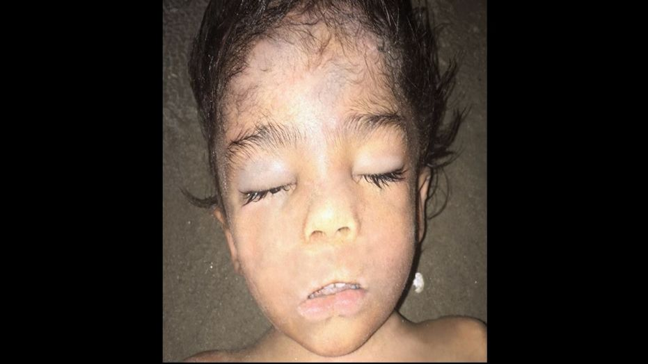 Investigators released a photo of the dead child, dubbed